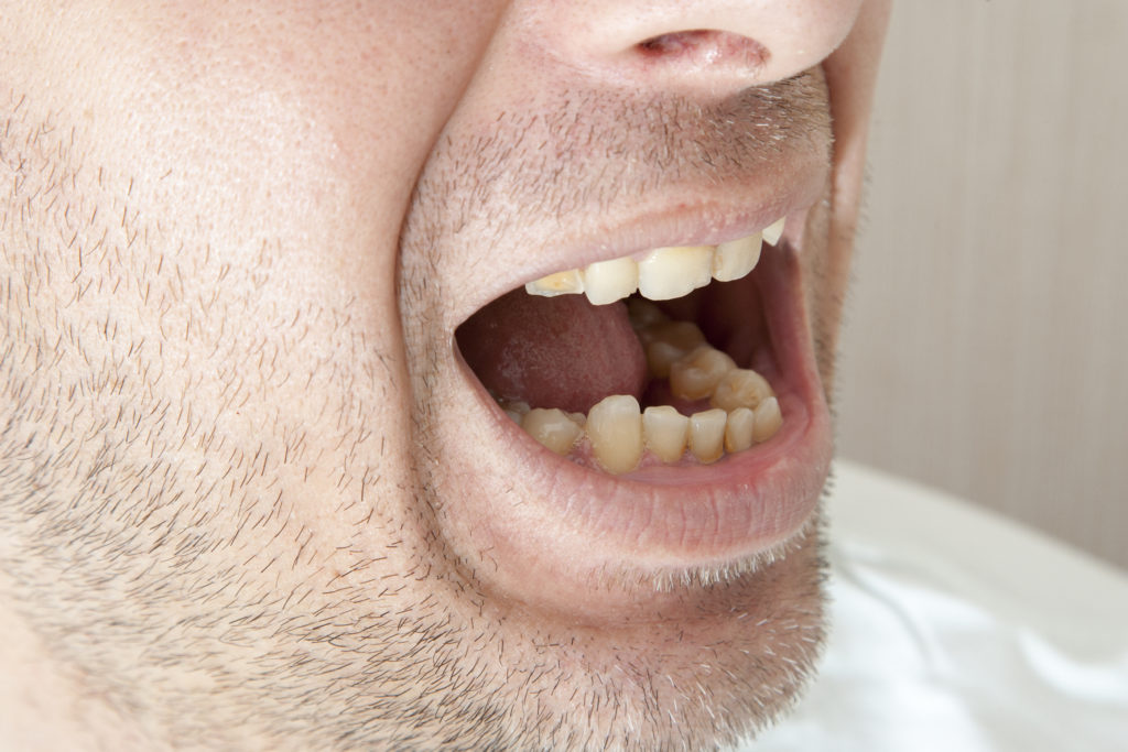 Diseased teeth